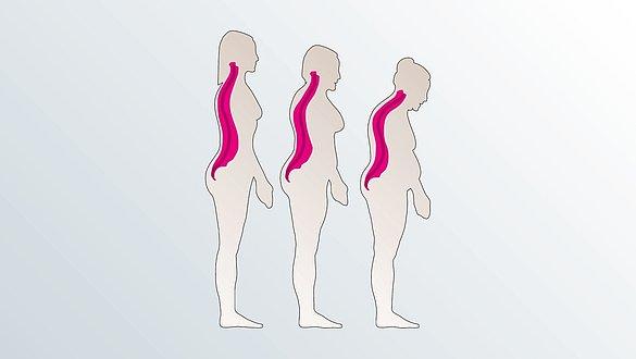 Osteoporose - Osteoporose