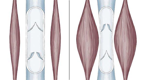 Bomba muscular da panturrilha - Bomba muscular da panturrilha