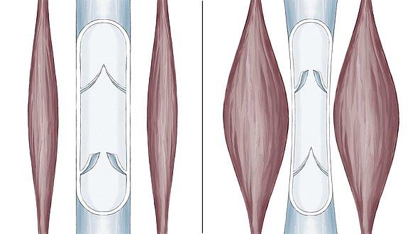 Bomba muscular da panturrilha