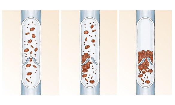 vein thrombosis anatomy