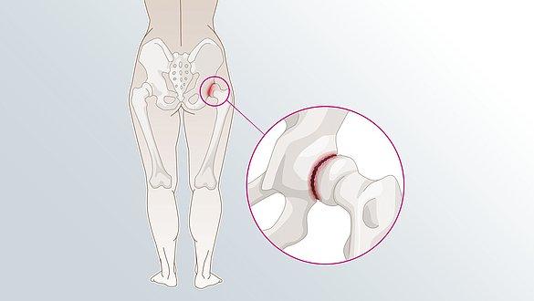 osteoarthritis hips